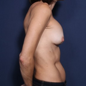 Before Photo - Breast Revision - Case #11918 - 53 Years Old Female  - Lateral View