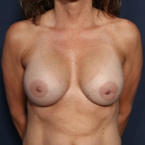 After Photo - Breast Augmentation - Case #11925 - 49 Years Old Female - Frontal View