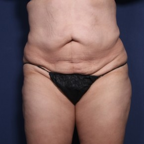 Before Photo - Tummy Tuck - Case #11928 - 36 Years Old Female  - Frontal View