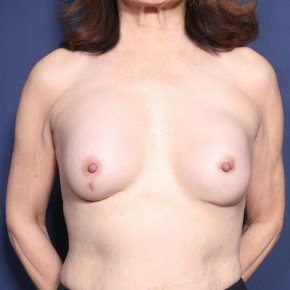 Before Photo - Breast Revision - Case #11929 - 71 Years Old Female - Frontal View