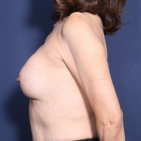 Before Photo - Breast Revision - Case #11929 - 71 Years Old Female - Lateral View