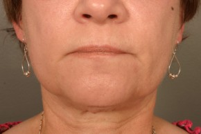 After Photo - Liposuction - Case #11930 - Neck Liposuction - Frontal View