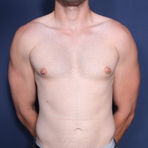 Before Photo - Gynecomastia - Case #11940 - 25 Year Old Male  - Frontal View