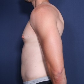 Before Photo - Gynecomastia - Case #11940 - 25 Year Old Male  - Lateral View