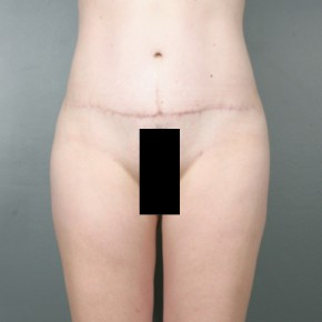 After Photo - Liposuction - Case #11943 - Liposuction to Thighs and Hips - Frontal View