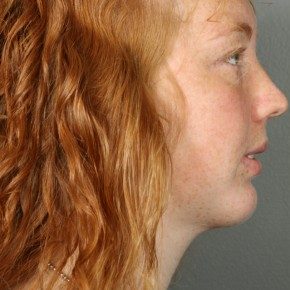 After Photo - Liposuction - Case #11944 - Liposuction Neck with Chin Implant - Lateral View