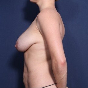 Before Photo - Breast Augmentation - Case #11946 - 33 Years Old Female (Breast Augmentation with Lift) - Lateral View
