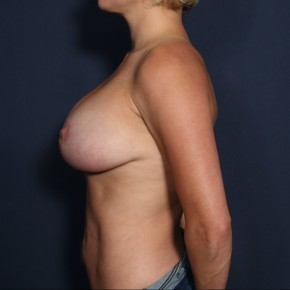 After Photo - Breast Augmentation - Case #11946 - 33 Years Old Female (Breast Augmentation with Lift) - Lateral View