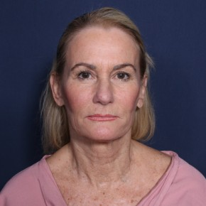Before Photo - Facelift - Case #11948 - 60 Years Old Female  - Frontal View