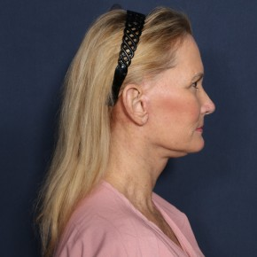 After Photo - Facelift - Case #11948 - 60 Years Old Female  - Lateral View