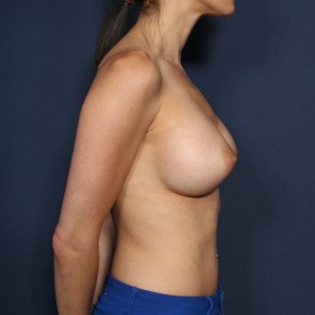 After Photo - Breast Augmentation - Case #11949 - 32 Years Old Female - Lateral View