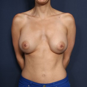After Photo - Breast Augmentation - Case #11949 - 32 Years Old Female - Frontal View