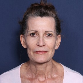 After Photo - Facelift - Case #11951 - 65 Year Old Female  - Frontal View