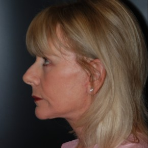 Before Photo - Facelift - Case #11954 - 68 Year Old Female  - Lateral View