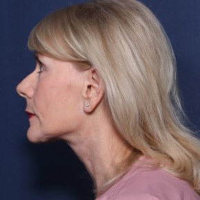 After Photo - Facelift - Case #11954 - 68 Year Old Female  - Lateral View