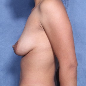 Before Photo - Breast Augmentation - Case #11955 - 27 Year Old Female (Breast Augmentation with Lift) - Lateral View