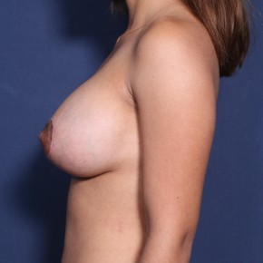 After Photo - Breast Augmentation - Case #11955 - 27 Year Old Female (Breast Augmentation with Lift) - Lateral View