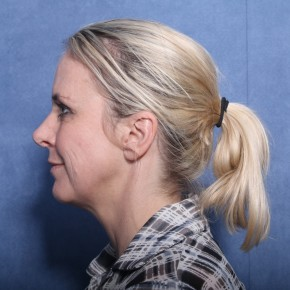 Before Photo - Facelift - Case #11957 - 45 Years Old Female - Lateral View