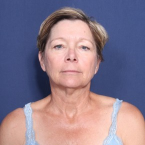 Before Photo - Facelift - Case #11958 - 60 Year Old Female - Frontal View
