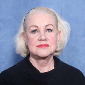 Before Photo - Facelift - Case #11964 - 73 Year Old Female  - Frontal View