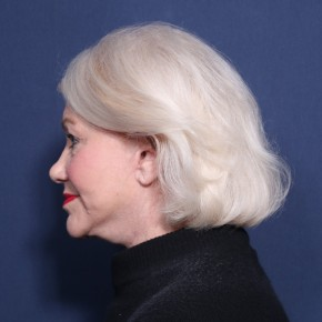 After Photo - Facelift - Case #11964 - 73 Year Old Female  - Lateral View