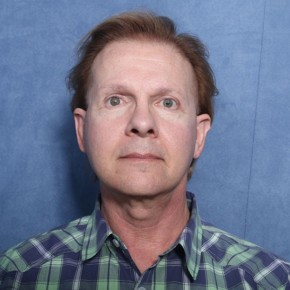 After Photo - Facelift - Case #11965 - 63 Year Old Male - Frontal View