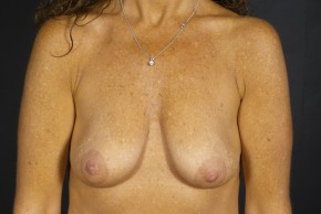 Before Photo - Breast Lift - Case #11969 - Augmentation Mastopexy with Round Silicone Implants - Frontal View