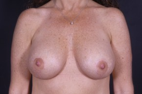 After Photo - Breast Lift - Case #11969 - Augmentation Mastopexy with Round Silicone Implants - Frontal View