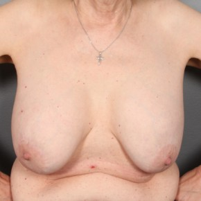 Before Photo - Breast Revision - Case #11971 - Implant Removal with Breast Lift - Frontal View
