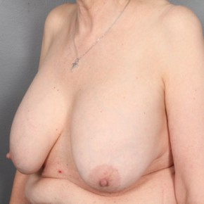 Before Photo - Breast Revision - Case #11971 - Implant Removal with Breast Lift - Oblique View