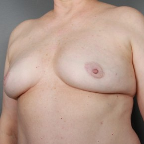 After Photo - Breast Revision - Case #11972 - Implant Removal - Oblique View