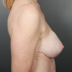 Before Photo - Breast Revision - Case #11973 - Implant Removal - Lateral View
