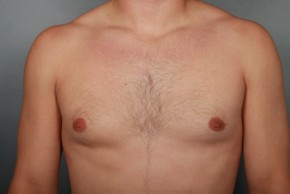 After Photo - Gynecomastia - Case #11974 - Frontal View
