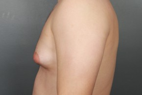 Before Photo - Gynecomastia - Case #11974 - Lateral View