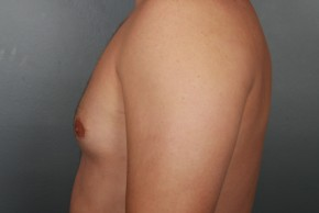 After Photo - Gynecomastia - Case #11974 - Lateral View