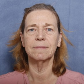 Before Photo - Facelift - Case #11975 - 60 Year Old Female - Frontal View