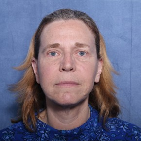 After Photo - Facelift - Case #11975 - 60 Year Old Female - Frontal View