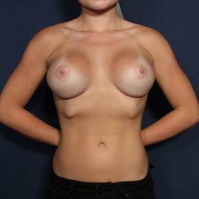 After Photo - Breast Augmentation - Case #11976 - 20 Year Old Female - Frontal View