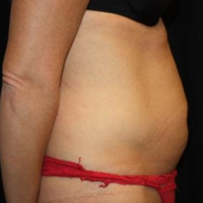 Before Photo - Tummy Tuck - Case #11977 - Abdominoplasty - 37 year old female. - Lateral View