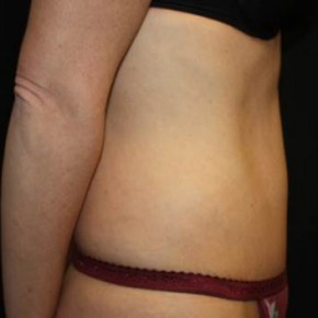 After Photo - Tummy Tuck - Case #11977 - Abdominoplasty - 37 year old female. - Lateral View