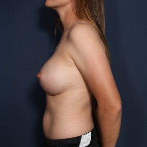 After Photo - Breast Augmentation - Case #11990 - 30 Year Old Female - Lateral View