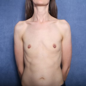 Before Photo - Breast Augmentation - Case #12006 - 34 Year Old Female - Frontal View