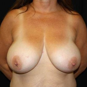 Before Photo - Breast Reduction - Case #12012 - Breast Reduction - 48 year old female - Frontal View