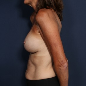 After Photo - Breast Revision - Case #12013 - 53 Year Old Female - Lateral View