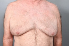 Before Photo - Gynecomastia - Case #12014 - Gynecomastia Excision - Frontal View