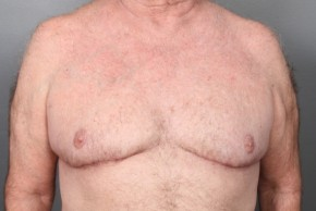 After Photo - Gynecomastia - Case #12014 - Gynecomastia Excision - Frontal View