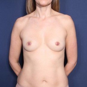 Before Photo - Breast Augmentation - Case #12018 - 37 Year Old Female  - Frontal View