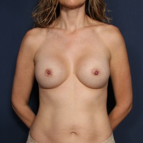 After Photo - Breast Augmentation - Case #12018 - 37 Year Old Female  - Frontal View