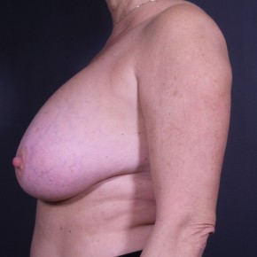Before Photo - Breast Revision - Case #12021 - Implant Removal - Lateral View