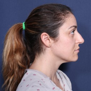 Before Photo - Nose Surgery - Case #12997 - 33 Years Old Female - Lateral View